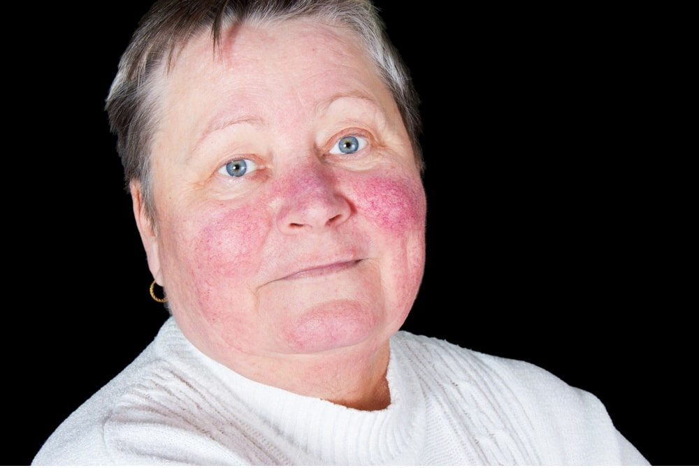 Portrait Happy Smiling Senior Woman Rosacea