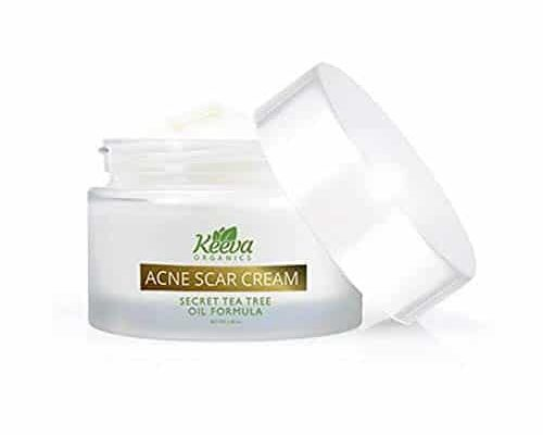Best Acne scar treatment