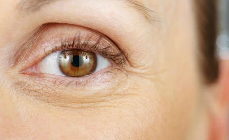 covering wrinkles around eyes